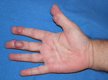 psoriasis en artrose