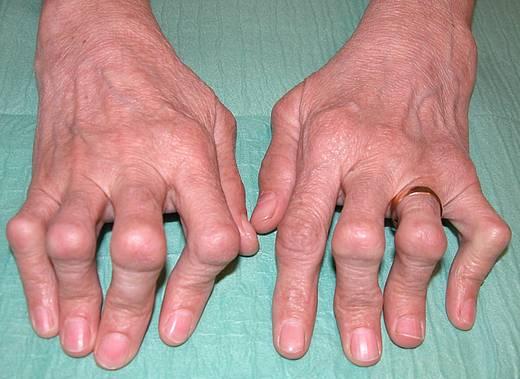 Was ist eine rheumatoide Arthritis?