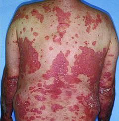 Arava bei psoriasis arthritis