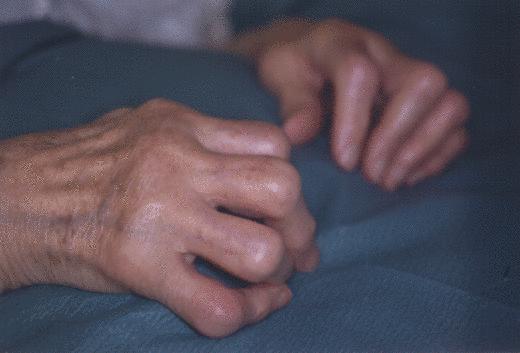 Die Gründe der Impotenz in 35 Jahre